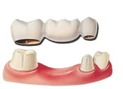 Photo of dental bridge for which you can learn the pros and cons from Glendale implant dentist Dr. Robert Thein.