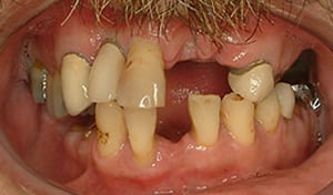 Closeup of mouth before dental implants