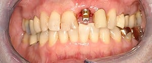 Glendale dental implants photo of patient (pf1) in the smile gallery of Dr. Robert Thein.