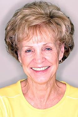 Photo of dentures patient from Glendale implant dentist Dr. Robert Thein.