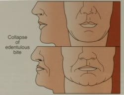 Facial collapse diagram for Los Angeles implant dentist Dr. Robert Thein.