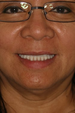 Smile gallery photo after 2 of patient (je) for Los Angeles dental implants from Dr. Robert Thein.