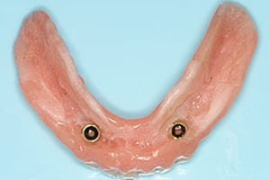 Photo of snap-on denture
