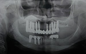 Glendale dental implants photo of patient (mag1) in the smile gallery of Dr. Robert Thein.
