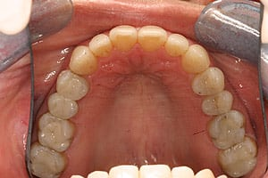 After photo of natural-looking tooth fillings from Glendale mercury-free dentist Dr. Robert Thein.