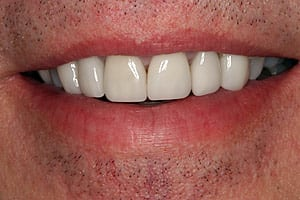 After porcelain veneers photo (J1) of patient from Glendale cosmetic dentist Dr. Robert Thein.