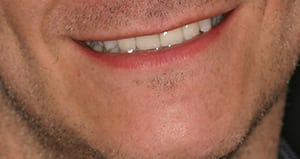 Closeup of Ray's Smile