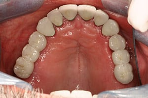 Los Angeles dental implants photo of patient (st1) in the smile gallery of Dr. Robert Thein.