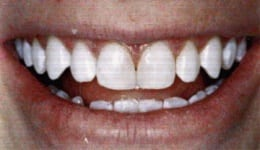 After photo of a tooth gap that can be removed by Glendale cosmetic dentist Dr. Robert Thein.