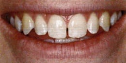 Dr. Thein uses dental bonding to fix or close gaps in front teeth.