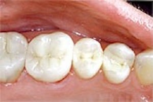 Before photo (2) of amalgam fillings, which can be replaced by Glendale mercury-free dentist Dr. Robert Thein.
