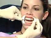 First photo of Zoom teeth whitening process from Glendale dentist Dr. Robert Thein.