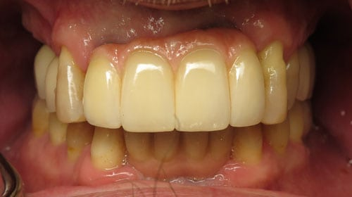 close up of completed dental implants