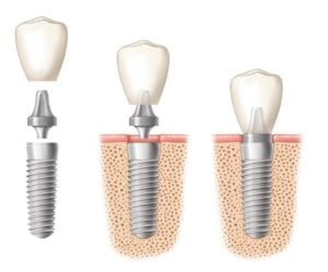 An implant crown being placed in three stages