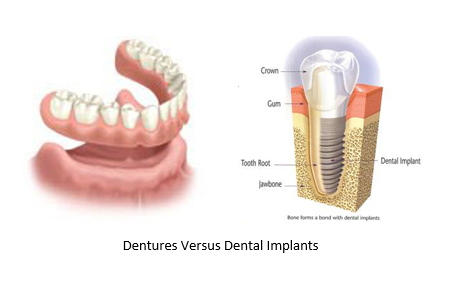 side by side comparison of dentures and dental implants