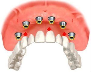 dentures which are going to be secured with dental implants