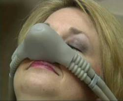 woman with dental sedation nosepiece for nitrous oxide