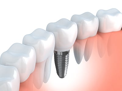 dental implant beside natural teeth